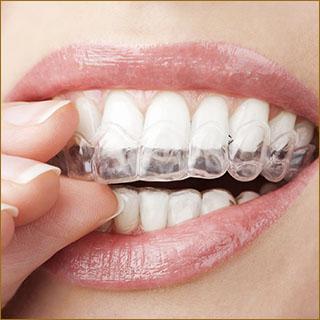 Dental Work Thailand